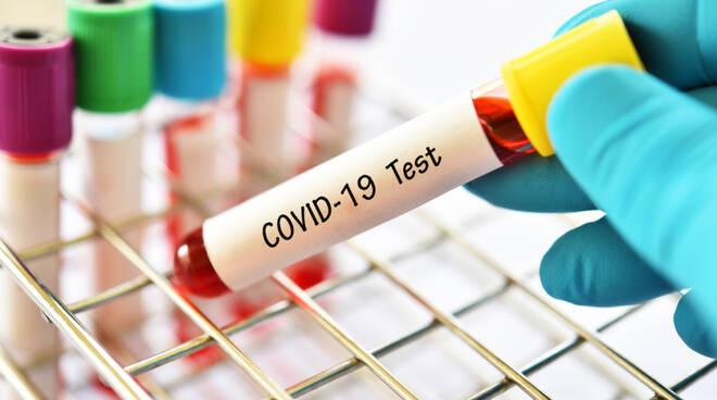 Martesana coronavirus covid-19